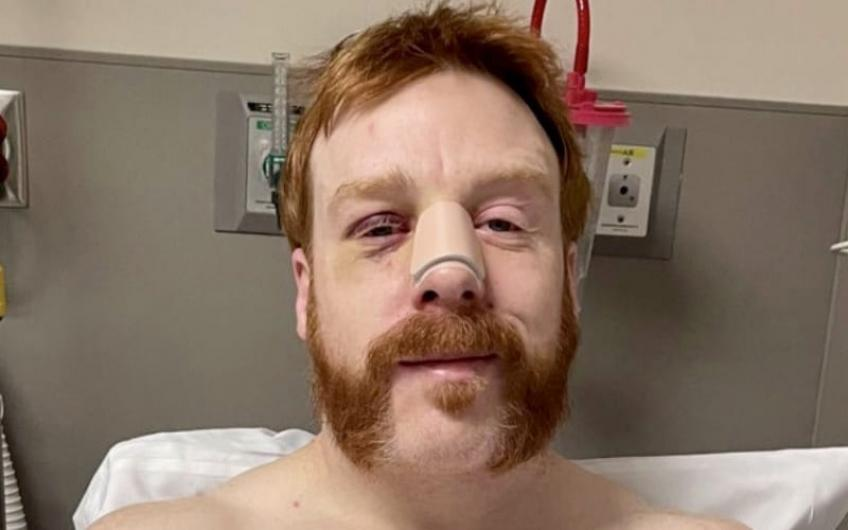 Sheamus gets nose surgery after getting injured on Raw
